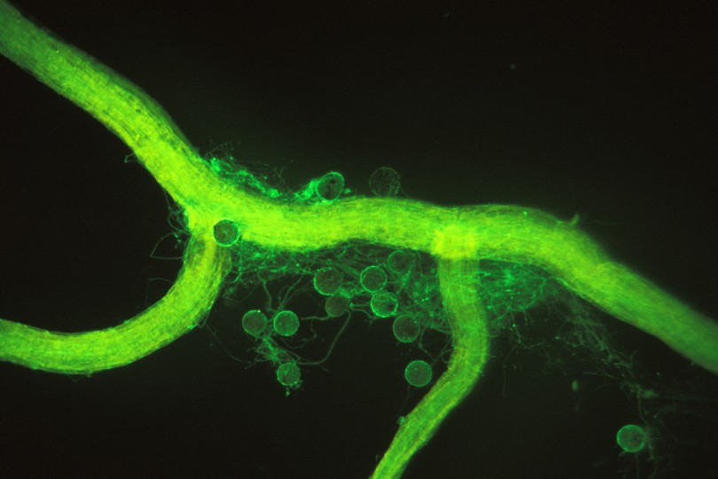 A microscopic view of an arbuscular mycorrhizal fungus growing on a corn root. The round bodies are spores, and the threadlike filaments are hyphae. The substance coating them is glomalin, revealed by a green dye tagged to an antibody against glomalin. Photo: Sara Wright.