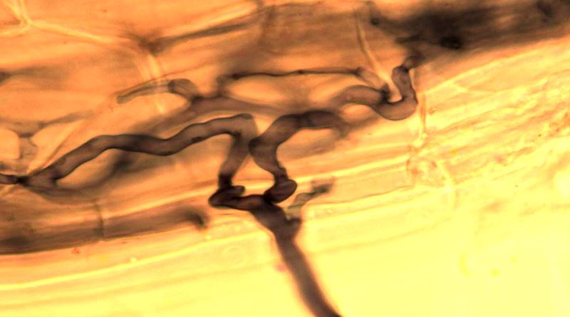 Cellular level image of mycorrhizae, courtesy Clapperton